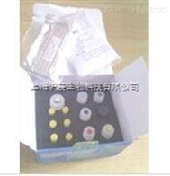 大鼠血栓调节蛋白(TM)检测试剂盒