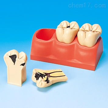 龋齿分解剖模型 牙医教学