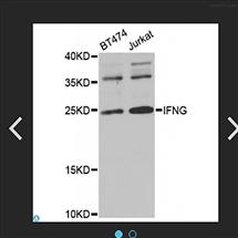 STJ24133Anti-IFNG Antibody