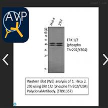 STJ91357Anti-P-ERK 1/2 (T202/Y204) antibody