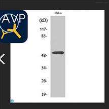 STJ94958Anti-Parkin antibody