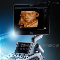 LX8 Super推车式全数字彩色超声诊断系统