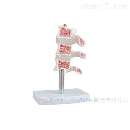 人体脊椎典型病变模型