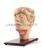 创伤头部模型1