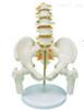 SMD01526腰骶尾椎与脊神经附骨盆和股骨模型 教学模型